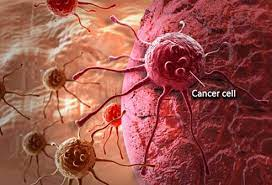 Overcome-any-cancer